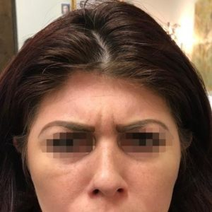 Before Botox Albuquerque