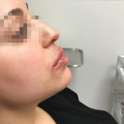 After Juvederm Volbella Albuquerque
