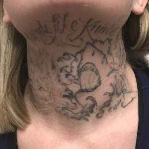 After Laser Tattoo Removal Albuquerque