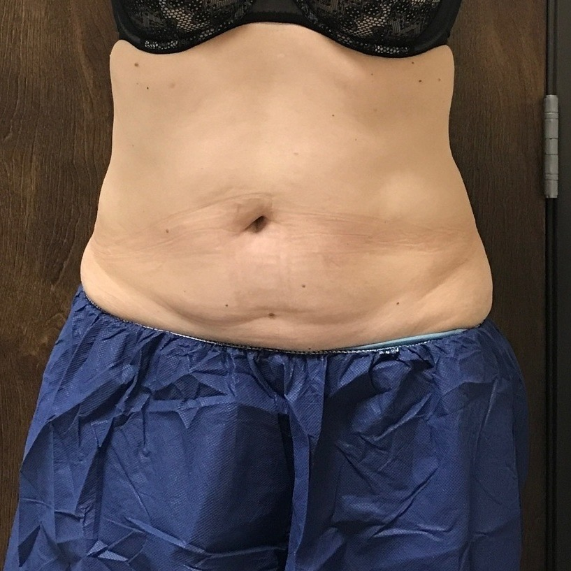 CoolSculpting Albuquerque