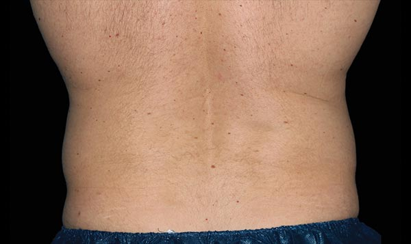 CoolSculpting for Men Albuquerque