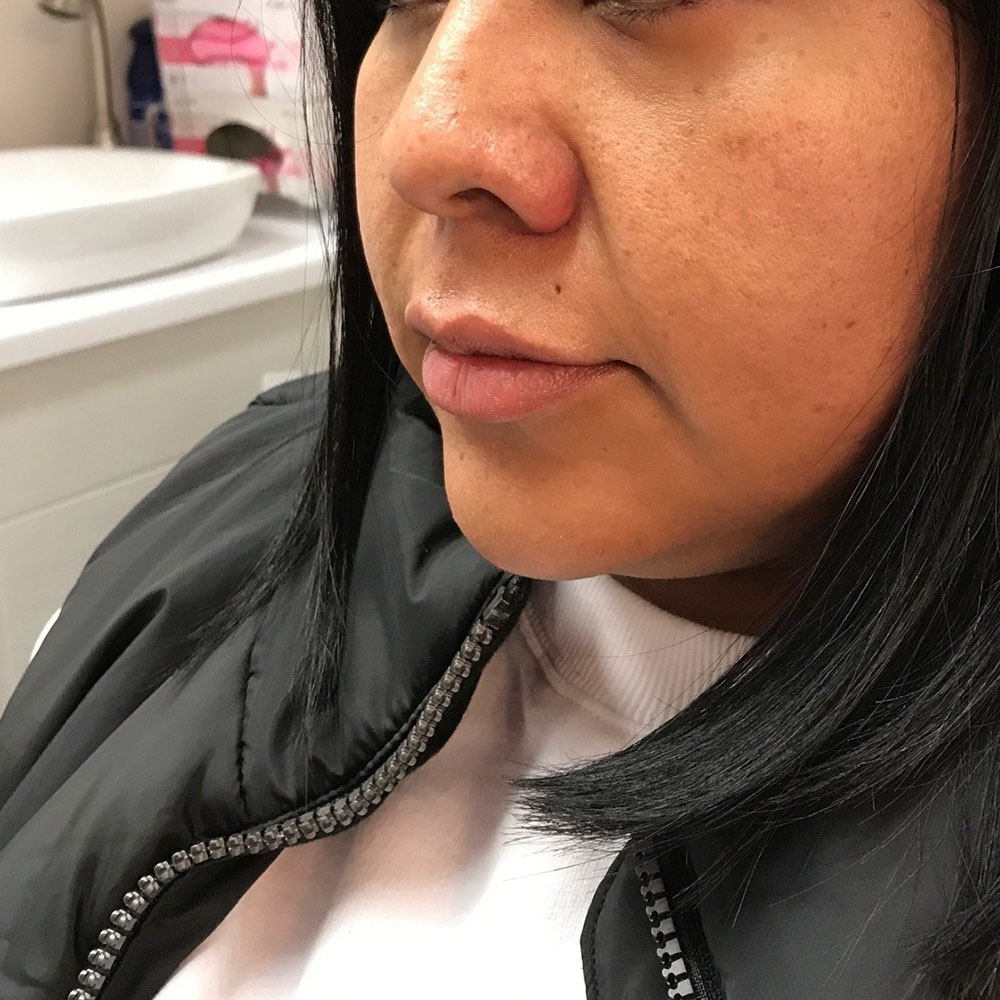 Tran-before-lip-injectionsCropped
