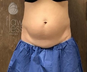 Coolsculpting Albuquerque - Before