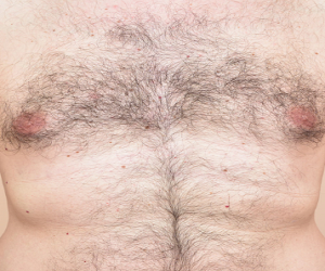 Laser Hair Removal Before