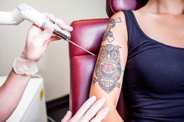Laser Tattoo Removal Albuquerque